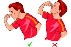 Πως στεκόμαστε σε μια αιμορραγία από τη μύτη