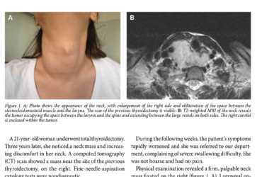 Aggressive desmoid fibromatosis of the neck after total thyroidectomy
