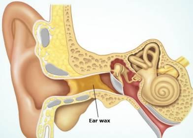 Βύσμα στο αυτί