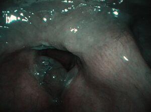 Τεράστιος πολυποδας λαρυγγα με NBI