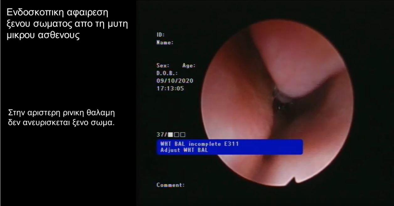 Ξένο σώμα στη μύτη