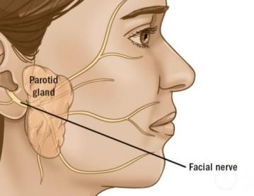 Η σχέση της παρωτίδας με το προσωπικό νεύρο.