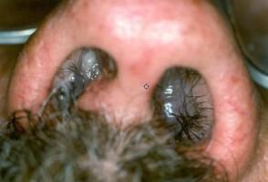 Πολύ σοβαροί πολύποδες μύτης